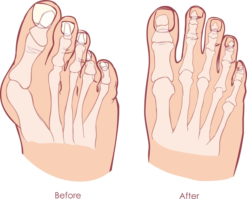 Bunion treatment before and after